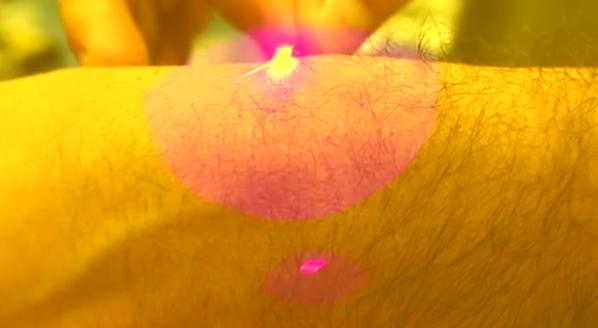 The_Skarp_Laser_Razor_21st_Century_Shaving_by_Skarp_Technologies_—_Kickstarter_-_YouTube_-_2015-09-30_01.57.02