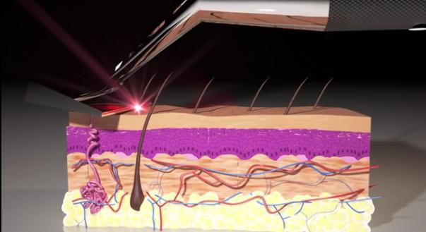 The_Skarp_Laser_Razor_21st_Century_Shaving_by_Skarp_Technologies_—_Kickstarter_-_YouTube_-_2015-09-30_01.57.43