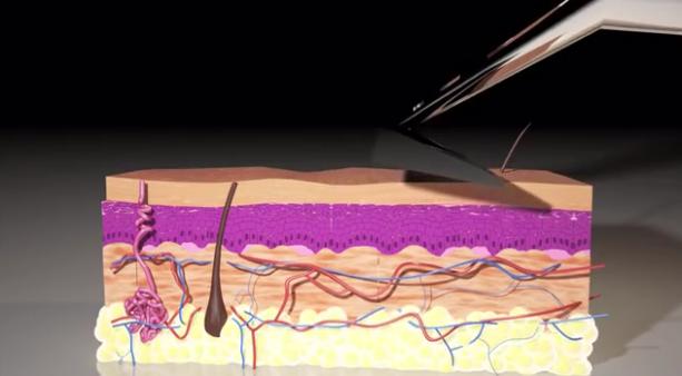 The_Skarp_Laser_Razor_21st_Century_Shaving_by_Skarp_Technologies_—_Kickstarter_-_YouTube_-_2015-09-30_01.58.00